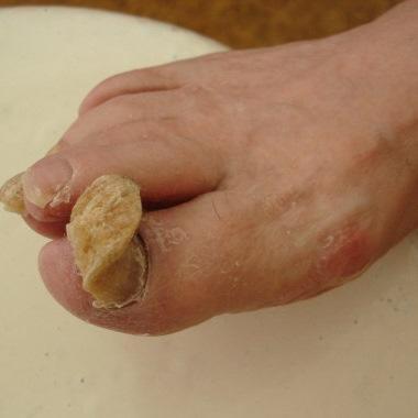 Препарат фунгин для лечения грибка ногтей стоимость