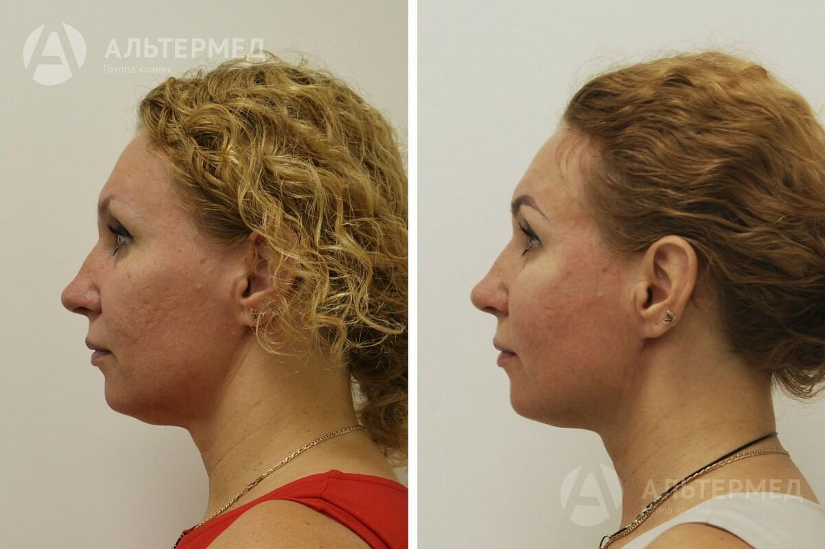 рем - лифтинг дл¤ области глаз и губ с церамидами 30гр