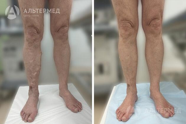 Tratamentul Cu Laser Al Varicelor (EVLK). Boala Vasculara | Enciclopedie medicală